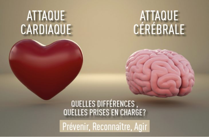 Conference-correze-attaques-cardiaques-AVC-2018